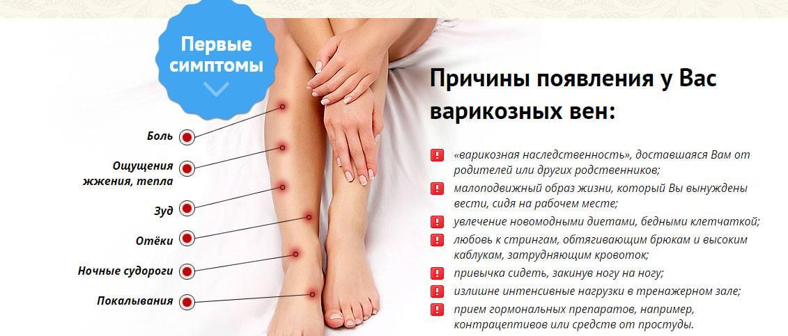 Почему чешутся ноги когда долго стоишь